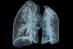 人工智能初步实现辅助筛查肺癌 比肉眼敏感度高20%