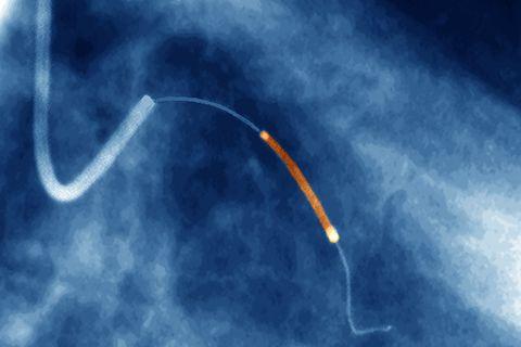 蓝帆医疗58.95亿元收购新加坡心脏支架制造商获批