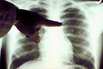 许多女性不吸烟,为什么还是会得肺癌?