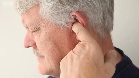人为什么会有耳垢?