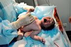 研究:新生儿缺维生素D更易患精神分裂症