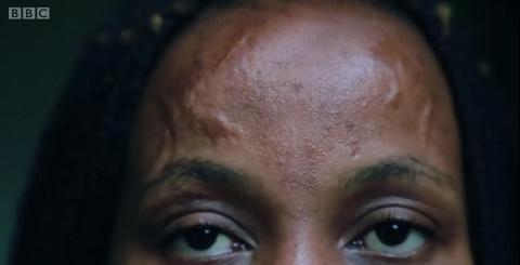 曾被烧伤的女模特:我不用化妆来掩盖疤痕