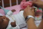 全球体重最轻的早产儿