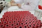 验血就能早诊阿尔茨海默症?学者开拓研究新路径