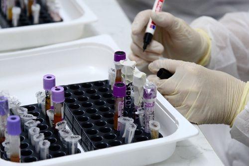 中国学者《自然》发文 解析新冠病毒细胞侵染结构
