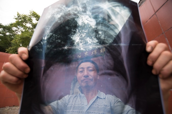 Fulai miner Chen Shiping shows his chest film. Chen was diagnosed with black lung disease in 2016. Photo: Caixin