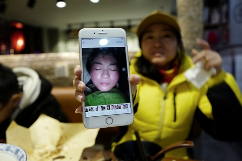 "Seller Min holds up a selfie of her swollen face taken after she tried the cosmetics she now sells. Though she likely had an allergic reaction to the product, she insists that she was ""detoxing."" Photo: VCG"