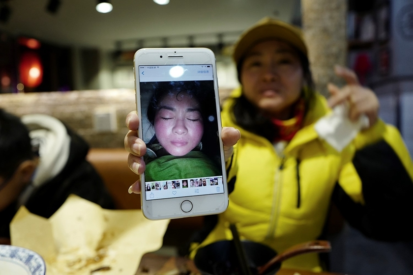"Seller Min holds up a selfie of her swollen face taken after she tried the cosmetics she now sells. Though she likely had an allergic reaction to the product, she insists that she was ""detoxing."" Photo: VCG _Gallery: The Dark Side of WeChat's Microstore Platform"