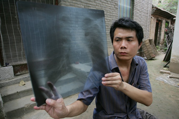 Zhang Haichao holds up his X-ray in July 2009 in Zhengzhou, Central China's Henan province. Photo: IC Photo